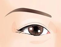 Double Eyelid Surgery Method For Those With Thin Eyelid