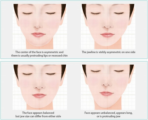 http://jpmaxface.com/facial-assymetry-treatment/