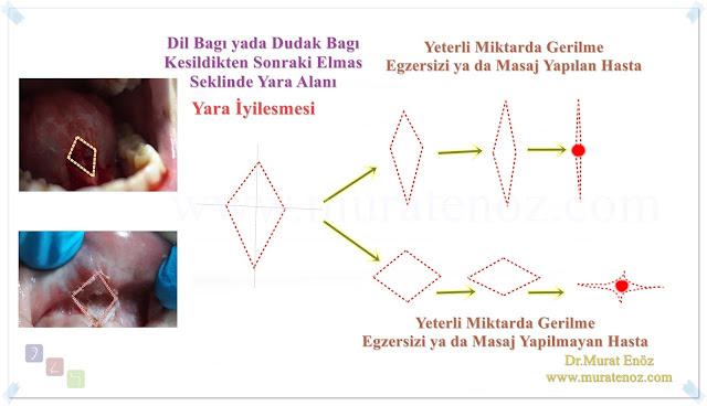 Dil Bağı Ameliyatı Sonrasında Yara Yerinin Özellikleri ve İyileşme