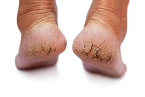 Talons-secs-crevassés-fissurés-comment-y-remédier