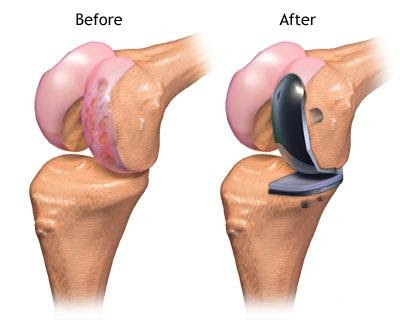 http://www.mahiclinic.com/partial-knee-replacement/index.html