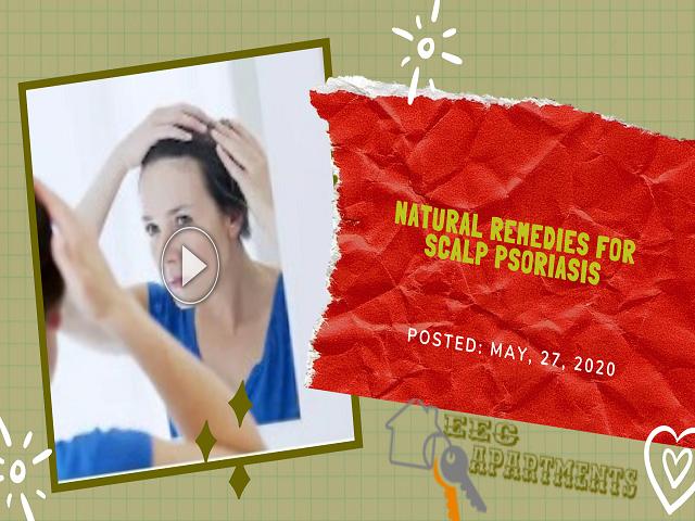 Natural Remedies For Scalp Psoriasis