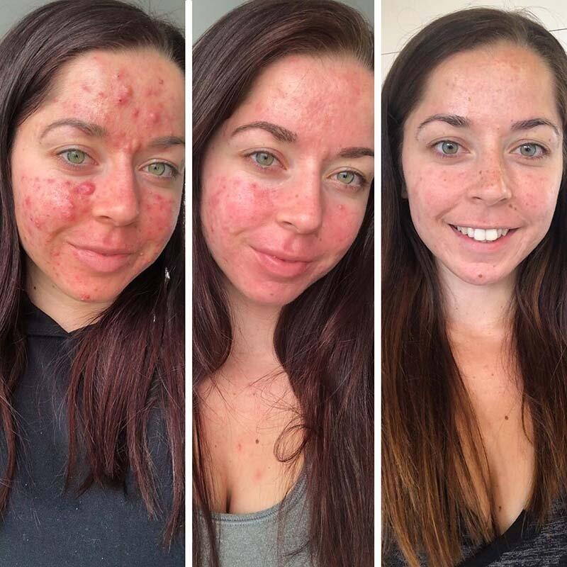 cómo-quitar-el-acne