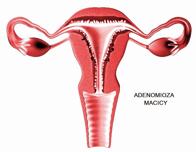 adenomioza co to jest