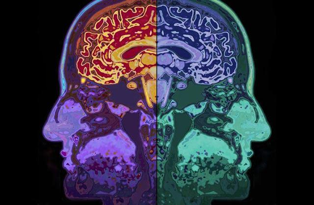 Estudo comprova que meditar rejuvenesce o cérebro em 7 anos