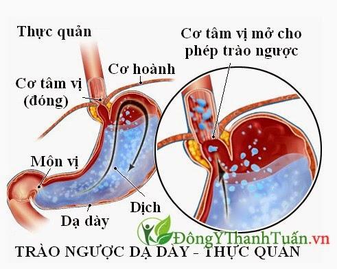 Trào ngược dạ dày thực quản - Nguyên nhân gây hôi miệng