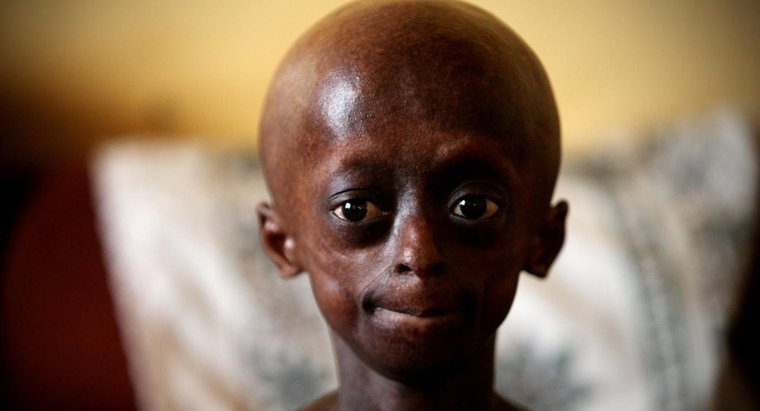 ¿Qué limitaciones tiene una persona con progeria?