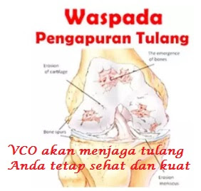 VCO Terbaik Atasi Osteoporosis