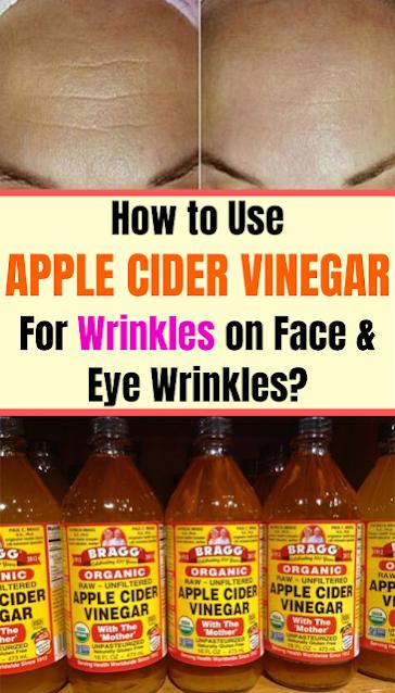 How to Use Apple Cider Vinegar for Wrinkles on Face & Eye Wrinkles?