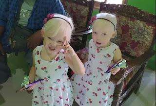 Berkenalan dengan Anak Albino Kembar yang Viral di Wonogiri