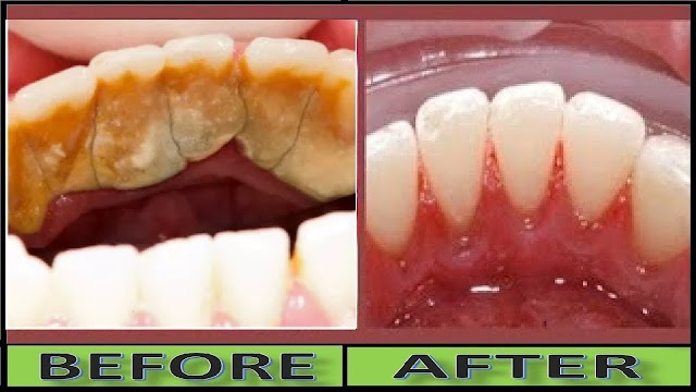 Effective ways to remove dental plaque naturally