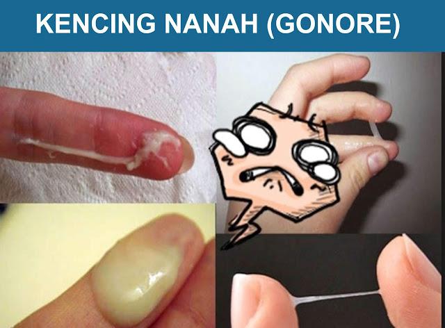 Penyakit Kencing Nanah Gonore