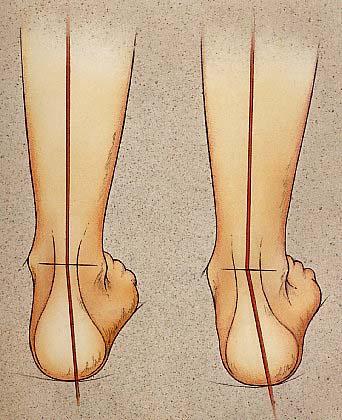 Papaverina pentru dureri de spate in timpul sarcinii
