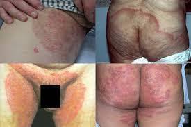 obat menghilangkan gatal pada selangkangan dan bokong secara alami