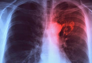 Penyakit Tuberculosis (TBC) Dan Cara Mengobatinya