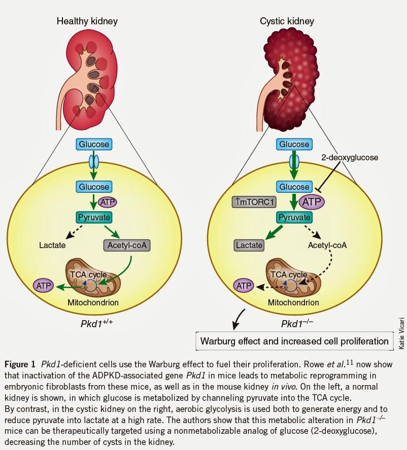 Reversing Kidney Failure