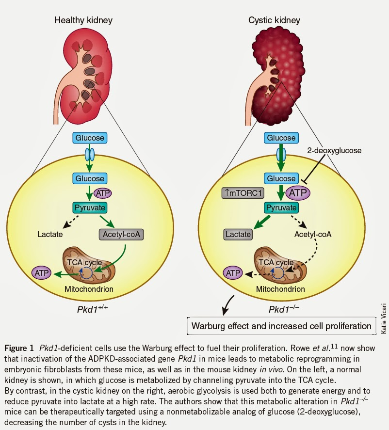 Ketosis & Kidney Failure