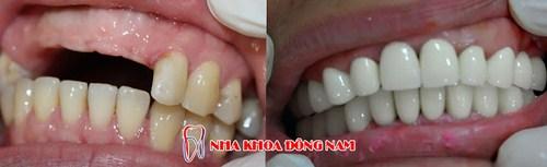 Trồng răng sứ cho 2 răng nhai bị mất