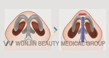 짱이뻐! - Korean Rhinoplasty - Nose Tip Correction