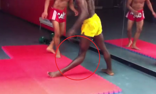 Man Dislocated His Knee After A Kickboxing Demonstration Goes Horribly Bad!