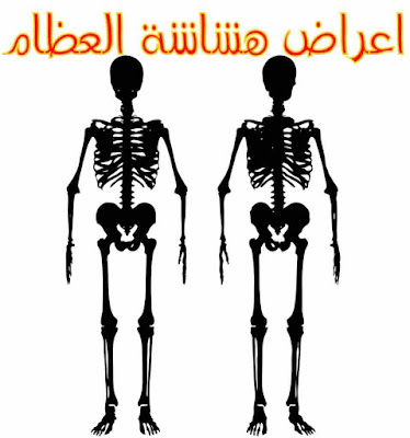 اعراض هشاشة العظام - اعراض مهمة يجب الانتباه لها !