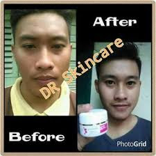 paket acne drw skincare buat pria