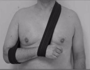 図:片麻痺スリング
