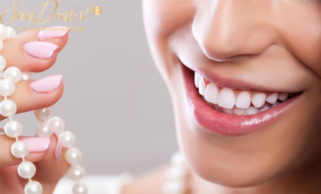 Phủ răng sứ có bị đen viền nướu không