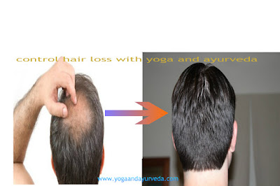 hair fall cure with yoga