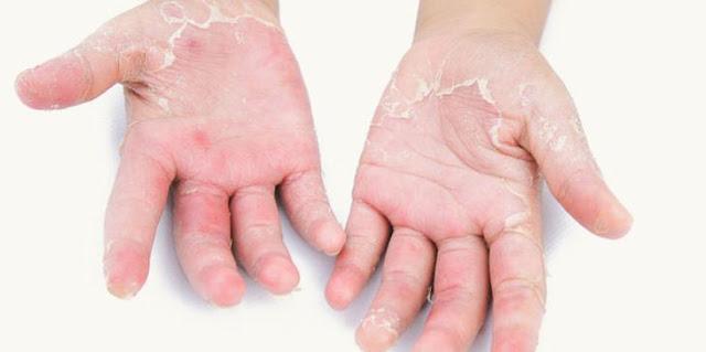 Kulit mengelupas, tanda gejala alergi