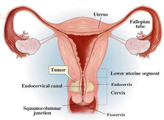 Penyebab Kanker Serviks Pada Wanita