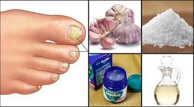 secretos para eliminar el hongo de las uñas