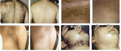 How To Naturally Remove Body Hair No Waxing Or Shaving Vlovehealth