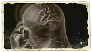 Wiki Medicamente antipsihotice lista cel mai bun tip de medicament neuroleptic