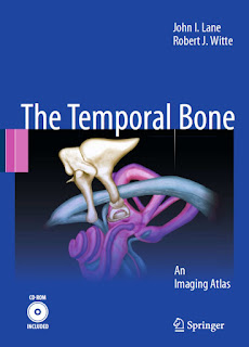 The Temporal Bone An Imaging Atlas