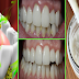 The Simple Method to Stop Bad Breath And Get Rid of Mouth Bacteria