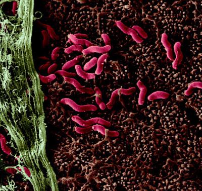 Làm thế nào để phòng tránh nhiễm Chlamydia