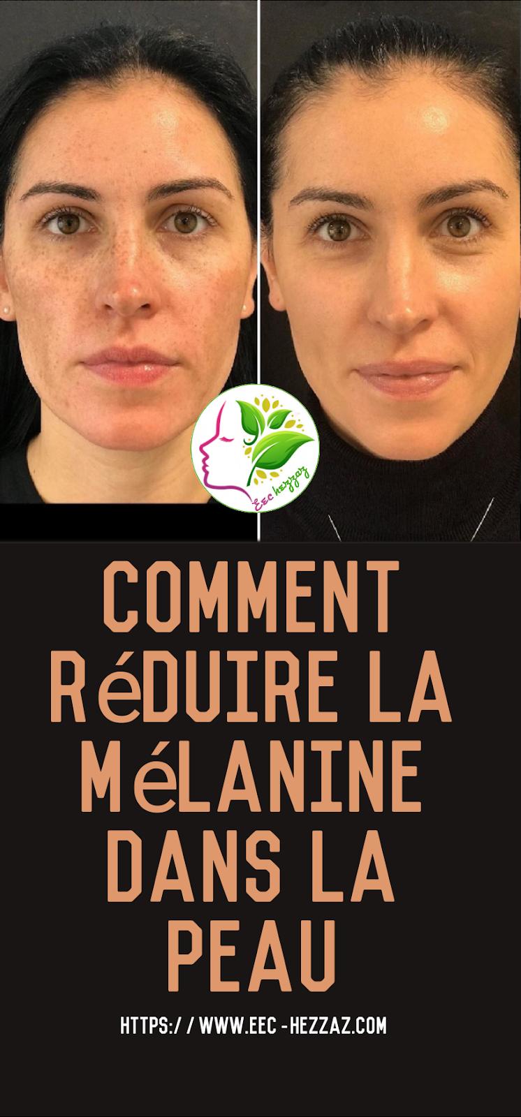 Comment réduire la mélanine dans la peau