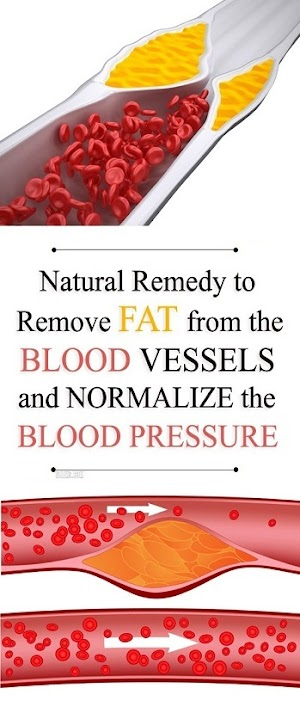 Effective Natural Remedy to Remove Fat from the Blood Vessels and Normalize the Blood Pressure