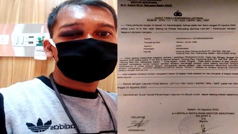 Oknum Ketua Ormas di Kepri Diduga Aniaya Wartawan