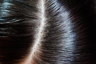 बालों से जूँ निकालने का सटीक तरीका Remove Lice in Hindi