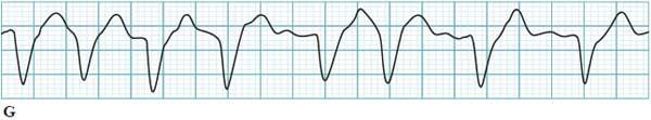 Atrial fibrillation with aberrant conduction ECG