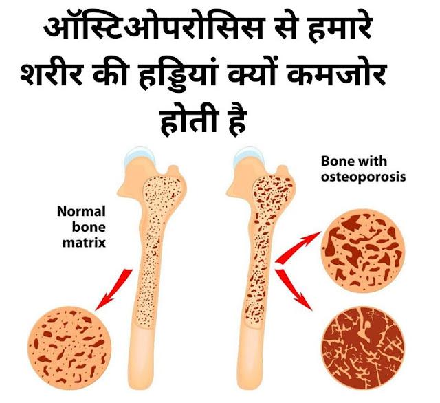 ऑस्टिओपरोसिस से हमारे शरीर की हड्डियां क्यों कमजोर होती है