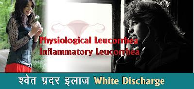 श्वेत प्रदर इलाज Leukorrhea Treatment in Hindi