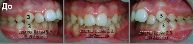 Три фото прикуса пациента до лечения брекетами с признаками прогнатии