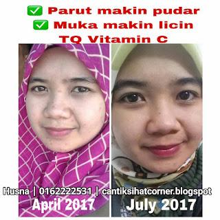 Produk perbaiki kulit wajah rosak
