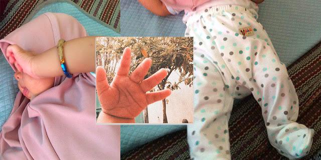 Mewaspadai Tongue Tie Pada Bayi Sejak Dini