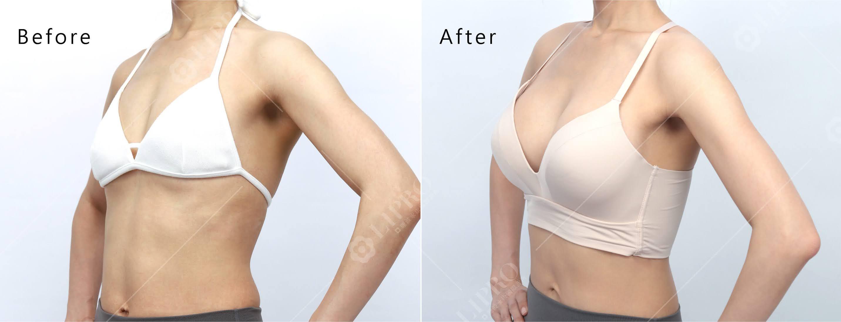 假體內視鏡隆乳手術術後分享_麗波永康國際診所