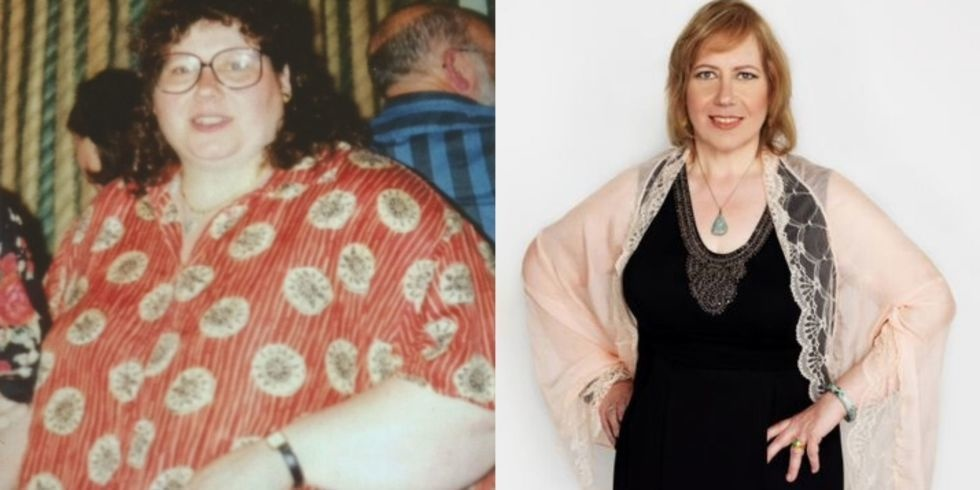 #22. When you've tried everything else, and can't lose weight, sometimes the only solution is hypnosis. - 23 Inspirational Before/After Photos Of People Who Can Say 'I Did It.'