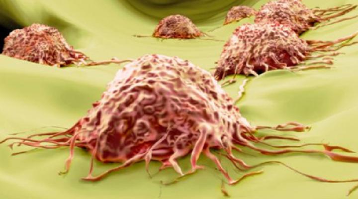 Mengenal Penyakit Kanker Pada Seseorang